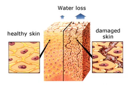 Healthy and Demaged Skin