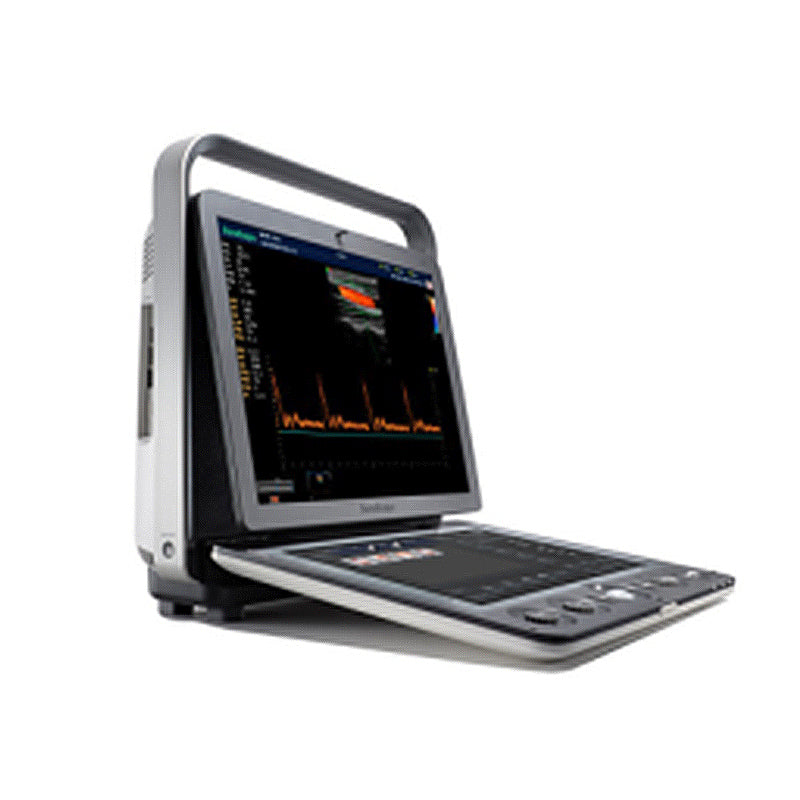 SONOSCAPE S9V Portable Color Doppler System OB / GYN Ultrasound
