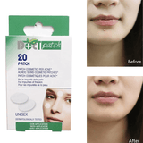 Acne Pimple Master Patch | 20 Patches