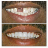 Instant Smile Veneers - Fake Cosmetic Dentures