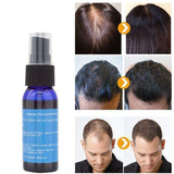Fast Growth Hair Essence Spray
