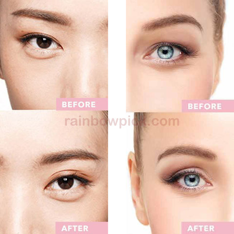 how to fix droopy eyelids instantly
