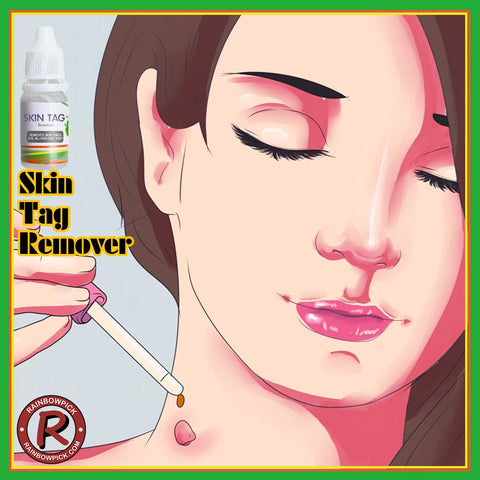 ST Remover