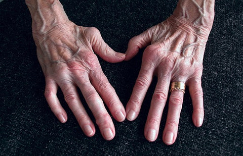 All you need to know about Rheumatoid arthritis