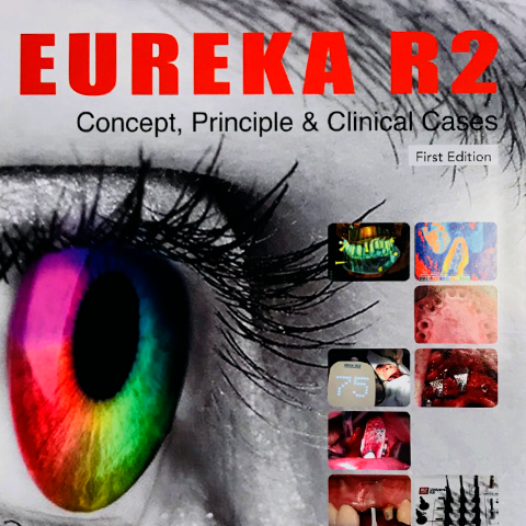 EUREKA R2 [Concept, principle & clinical cases] First edition
