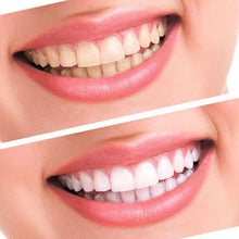 before & after tooth whitening professional dental kit