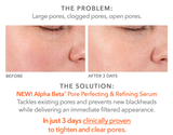 Dr. Dennis Gross Skincare Alpha Beta® Pore Perfecting & Refining Serum