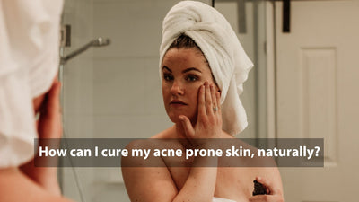 How can I cure my acne, naturally?
