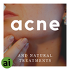 Acne and Natural Treatments - Aromatic Ingredients