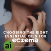 Choosing the right essential oils for eczema sufferers - Aromatic Ingredients