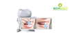 Nano Tech Teeth Whitening Kit