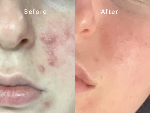 australian acne skin care products