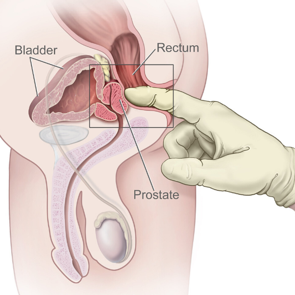 How to Find Your Prostate in Five Minutes Flat