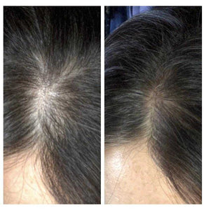 H.  Monoatomic Hair Growth Treatment
