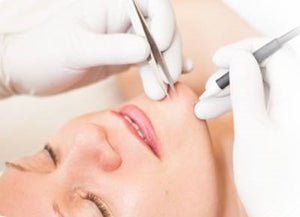 Electrolysis Treatments for Permanent Hair Removal at The Summit Spa in Halifax