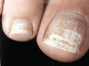 Removed Your Toenail Polish and Have White Chalky Patches?