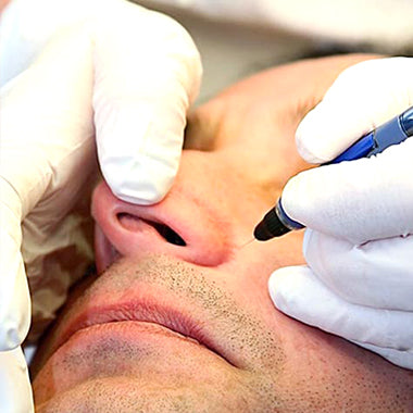 Facial Vein Removal by Thermocoagulation