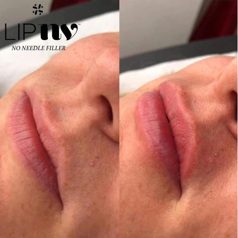 LipNV no needle lip filler training at Network HQ Tuesday 10th September