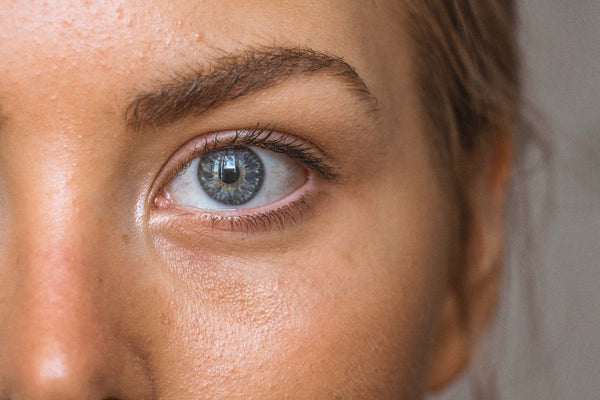 Ayurveda for skincare. A close-up shot of a caucasian woman's face showing one blue eye and a nose. Her skin shows slight bumps and oiliness.