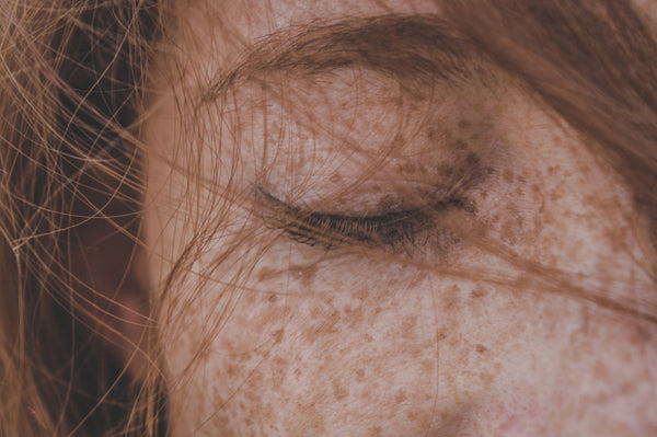Windburn or sunburn? A close-up of a red-headed woman's closed right eye and freckly face