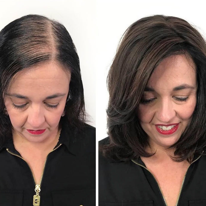 Women with Hair Loss – How & Why it Creates an Inferiority Complex