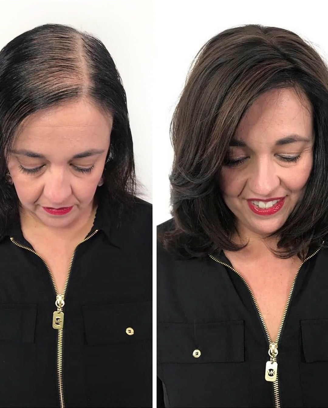 hairloss, before and after woman, wig, alopecia, female pattern baldness