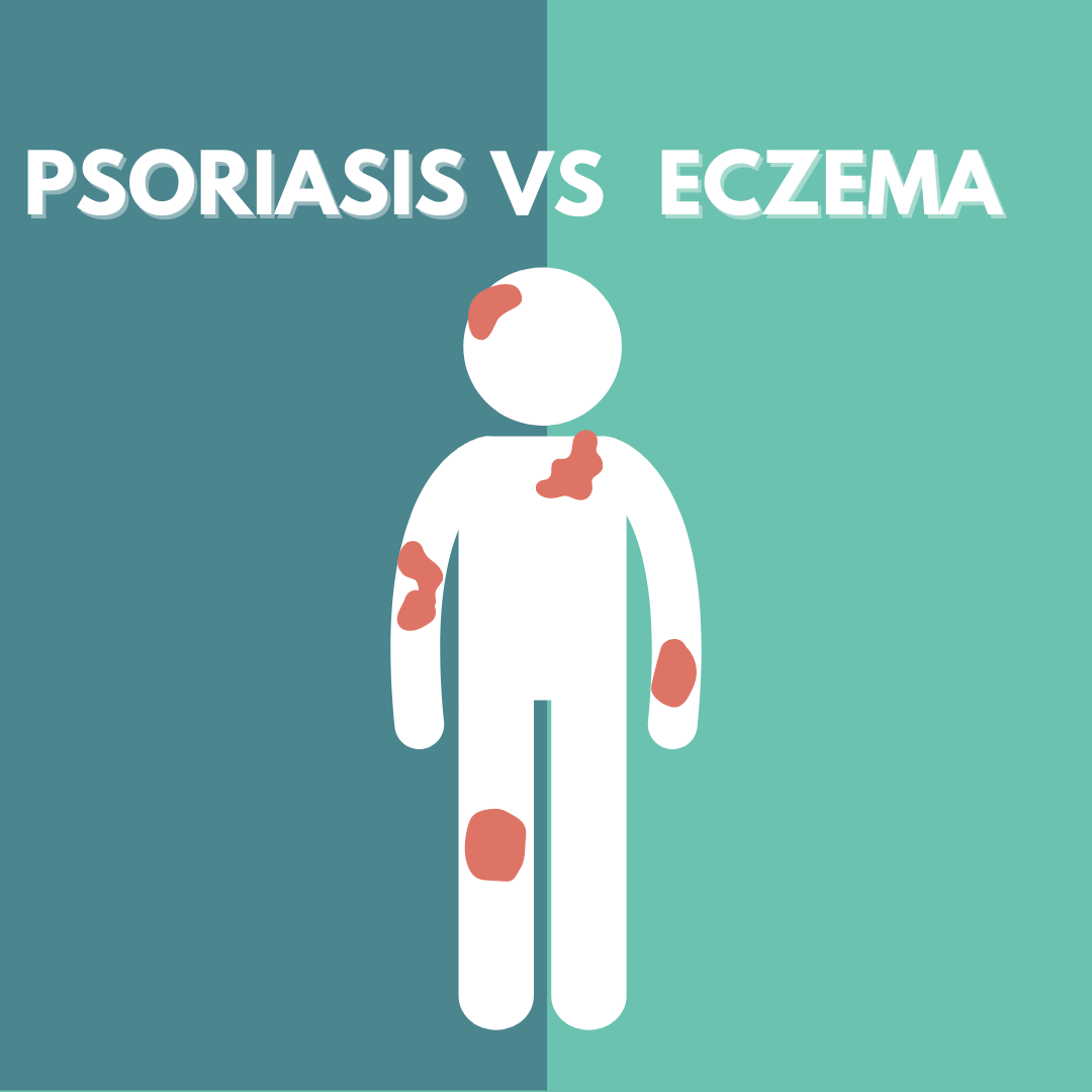What's the Difference between Psoriasis vs Eczema?
