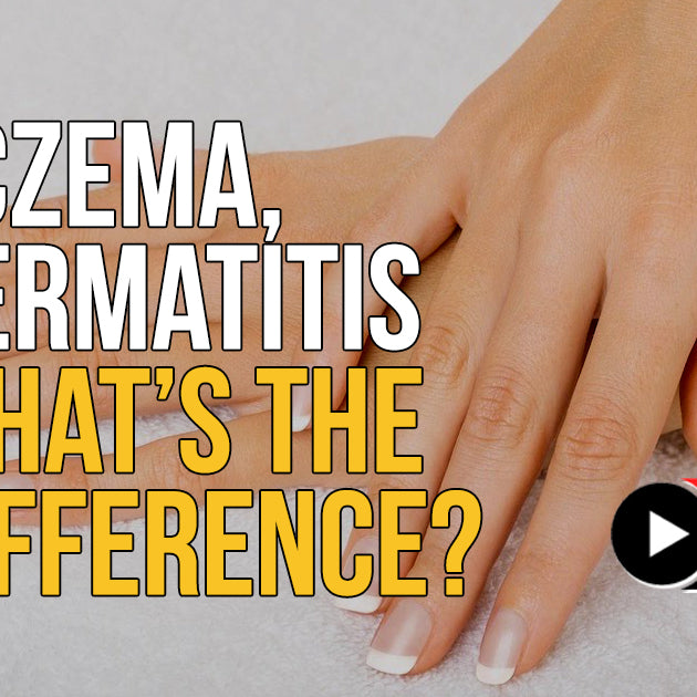 Eczema, Dermatitis - What's the Difference?
