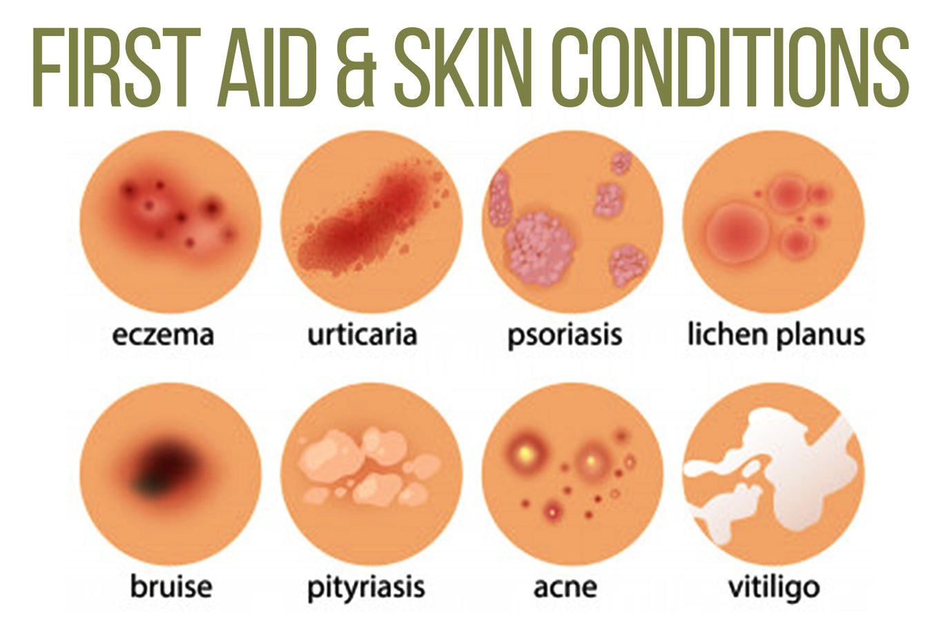 FIRST AID & SKIN CONDITIONS