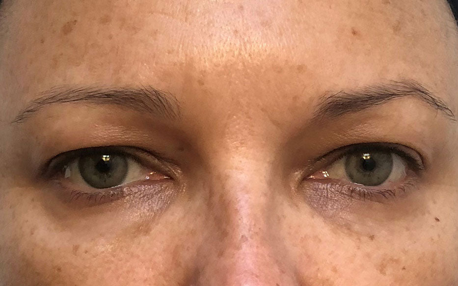 After 3 Uses of BLUE ALGAE VITAMIN C Dark Spot Correcting Peel