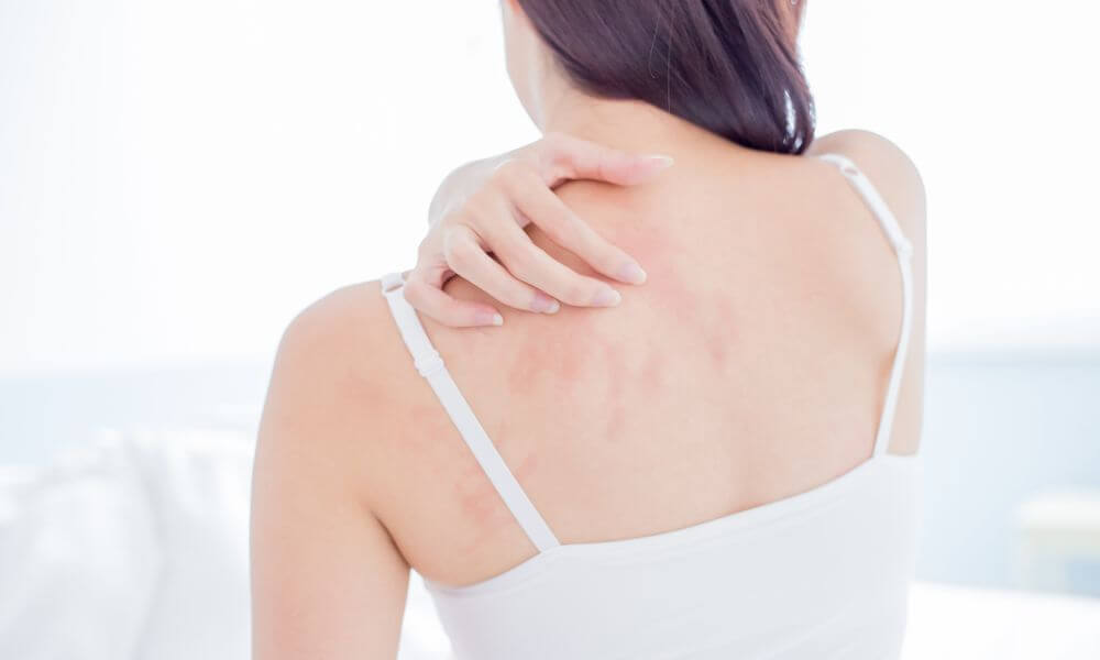 7 Causes of Damaged skin - Your Skin repair Guide for Faster Healing