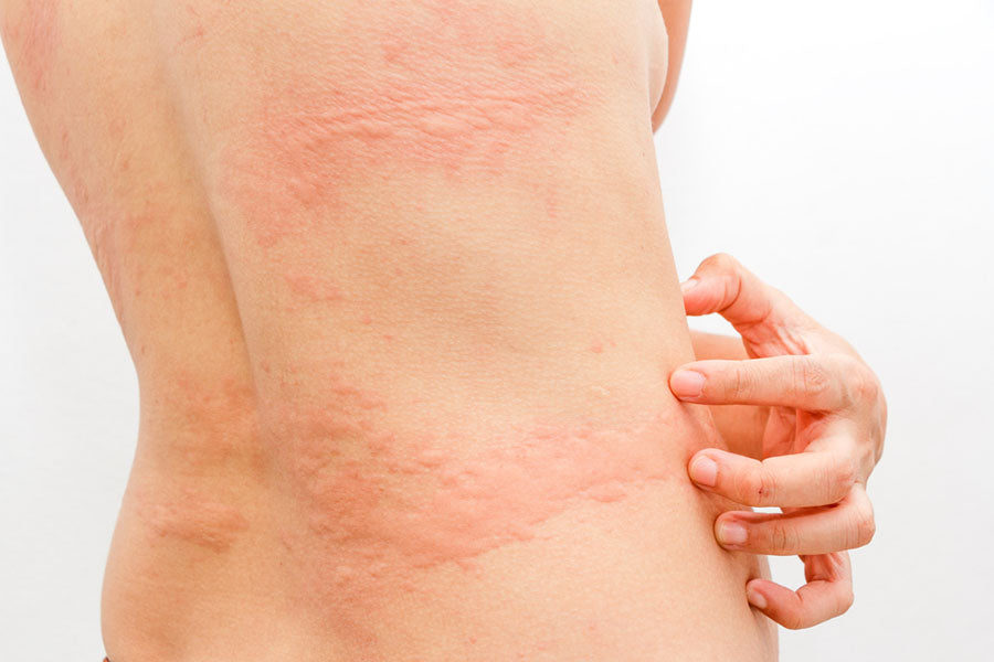Hives 101: What Causes Hives and How to Get Rid of Them Fast