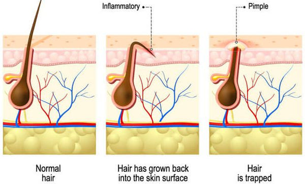 What causes ingrown hair
