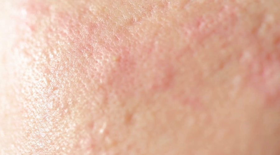 what's the cause of cystic acne