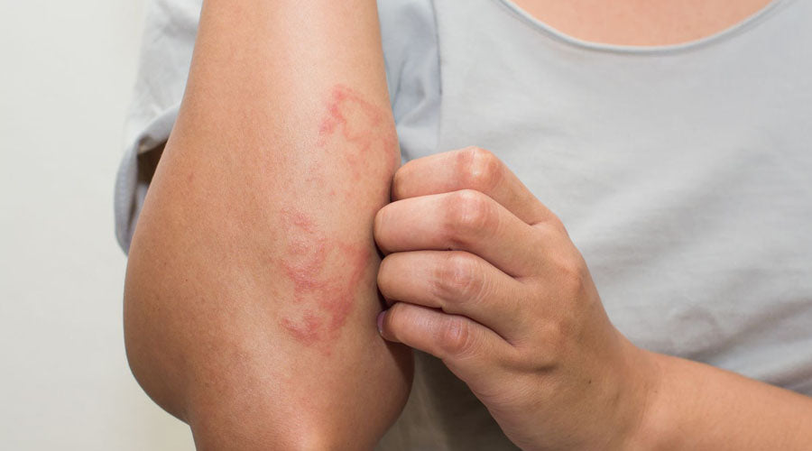 how to heal eczema