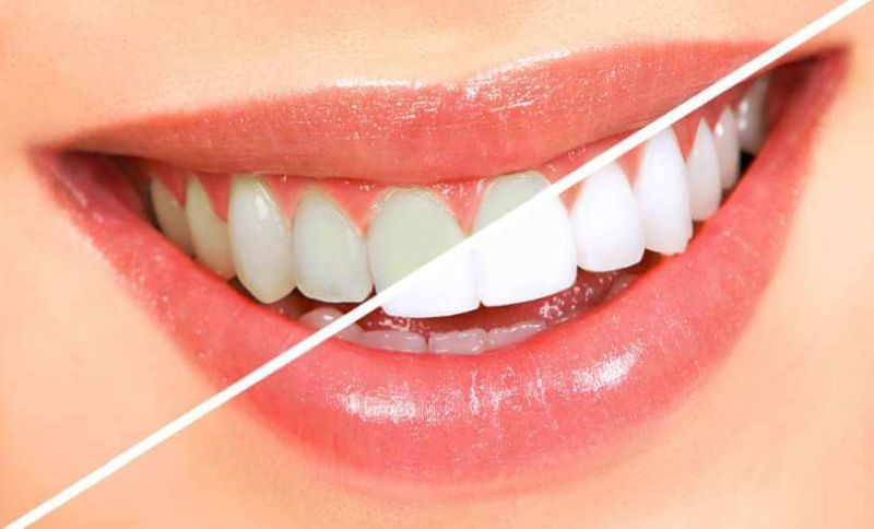 Why Try Natural Teeth Whitening With Activated Carbon Charcoal