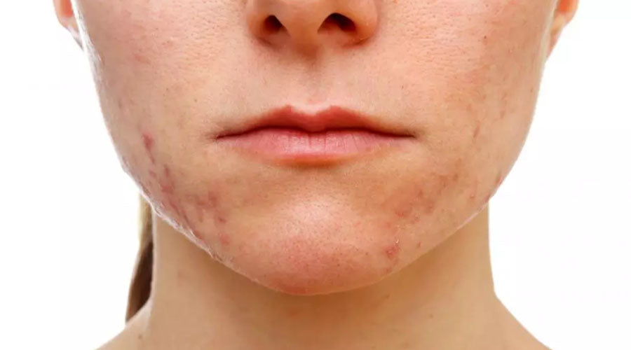 acne creams toxins
