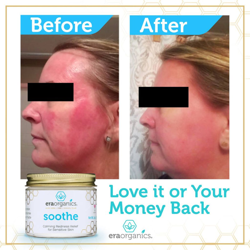 Rosacea Redness Relief Cream