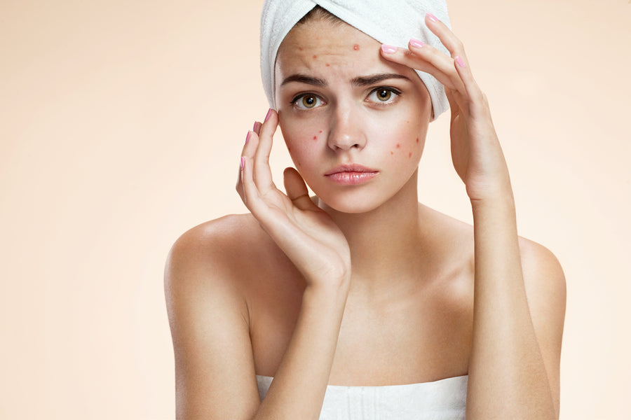 12 Sneaky Culprits That May Be Causing Your Acne