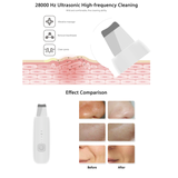 Ultrasonic Ion Deep Cleansing Facial Wand