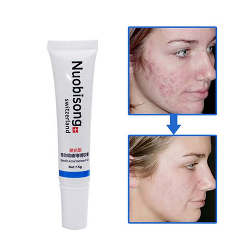 Nuobisong Switzerland Anti-Redness Anti-Scar Acne Treatment - STYLEFOX®