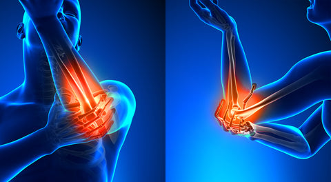 Elbow pain due to muscle imbalances
