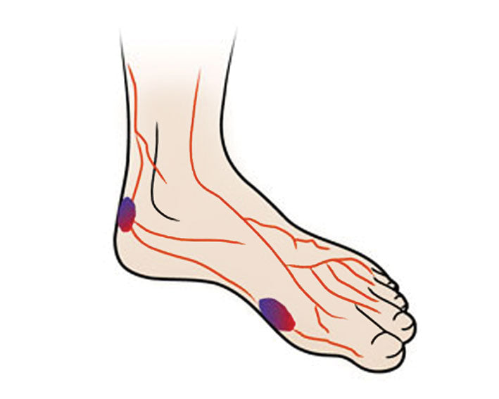 9d777b976641 The Diabetic Foot – Can Orthotics Help  – Footlogics USA