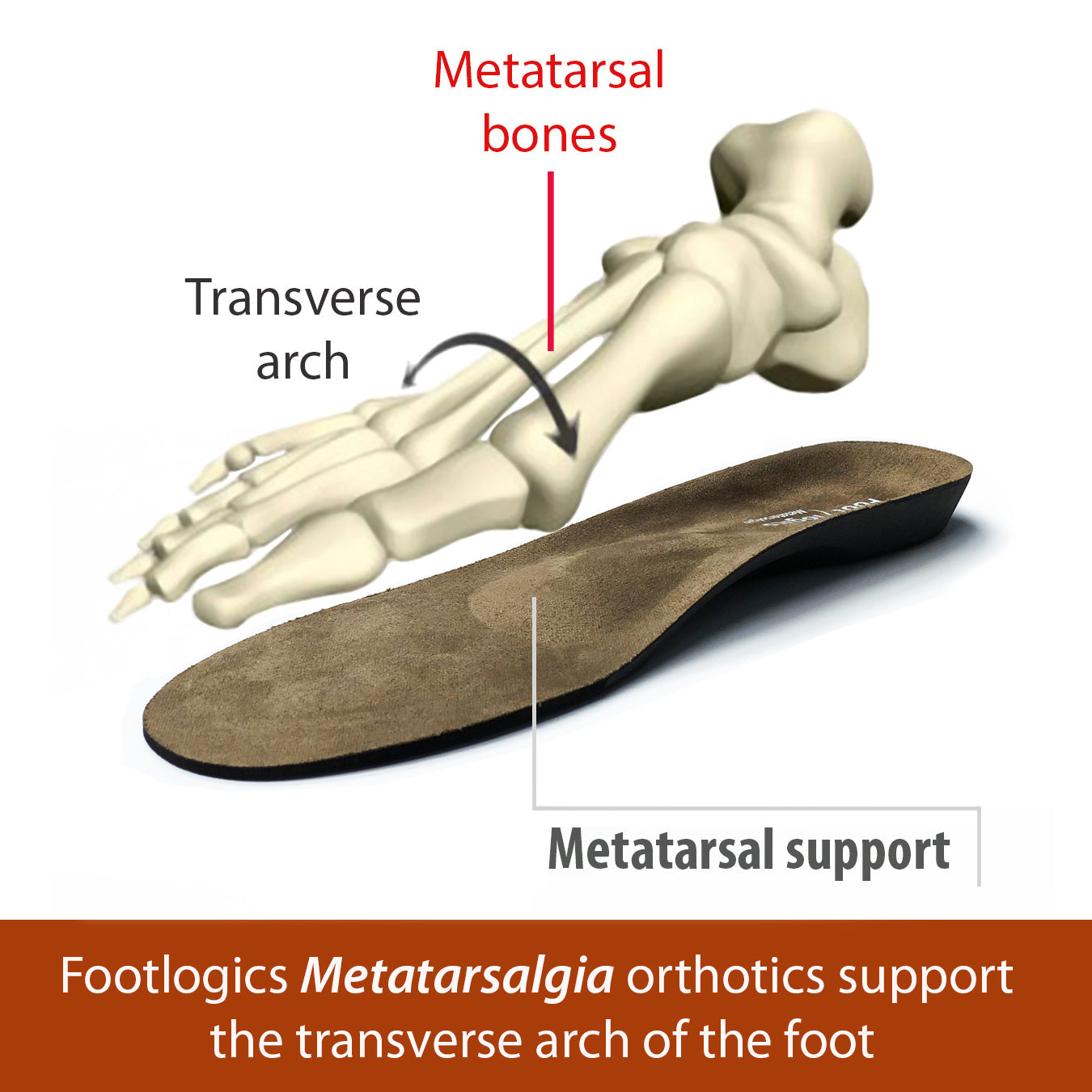 Footlogics Metatarsalgia Full-length