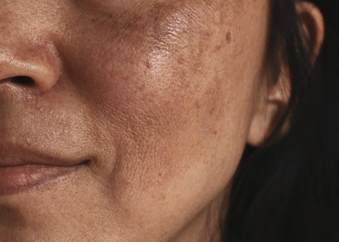 Freckles From The Sun Hyperpigmentation