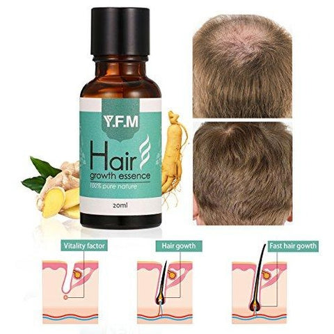 زيت نمو الشعر ايسانس- Y.F.M Hair Growth Essence oil, 20 ml - UK2Gulf.com