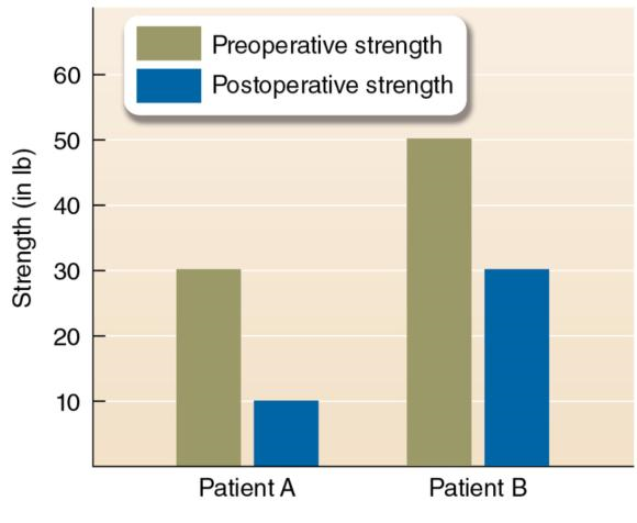 Figure 1.3 Example of differences in preoperative and postoperative strength measures between two similar patients. The stronger a patient is before surgery, the stronger a patient is after surgery.