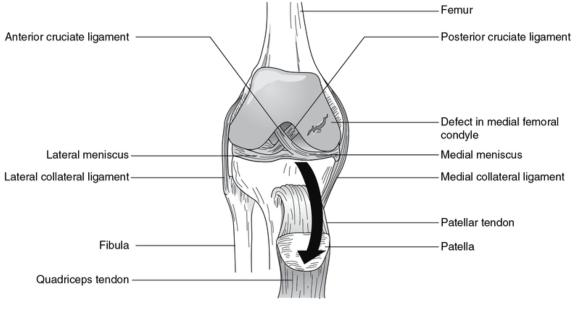 Figure 16.9 Damaged articular cartilage. Large defect in the medial femoral condyle.