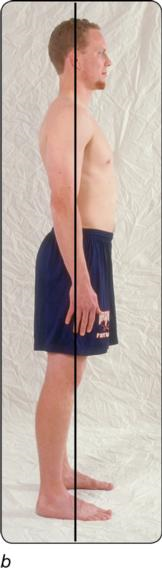 Figure 4.2 Correct standing alignment: anterior, lateral, and posterior views.