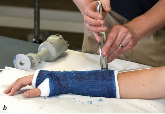 Figure 1.24 Hold the cast saw blade perpendicular to the cast. Cast spreaderis used to separate the opposing edges of the cast. Bandage scissors are used to cut the underlying cast padding and stockinette.